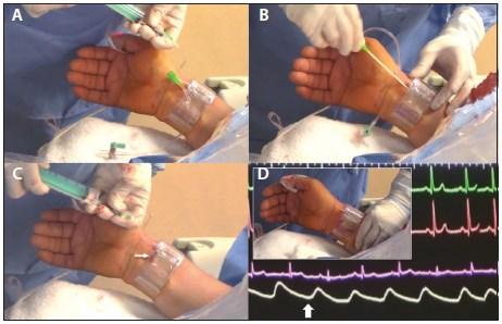 1111 RADIAL as well Swanganj Catheter Kitedward Lifescience further Radial Artery furthermore Radial Approach Cardiac Catheterisation in addition 84647. on tr band cardiac catheterization
