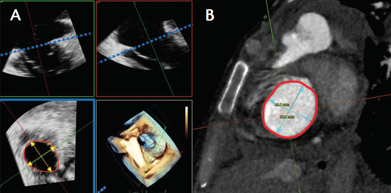 Cardiac Interventions Today - Imaging Considerations for ...