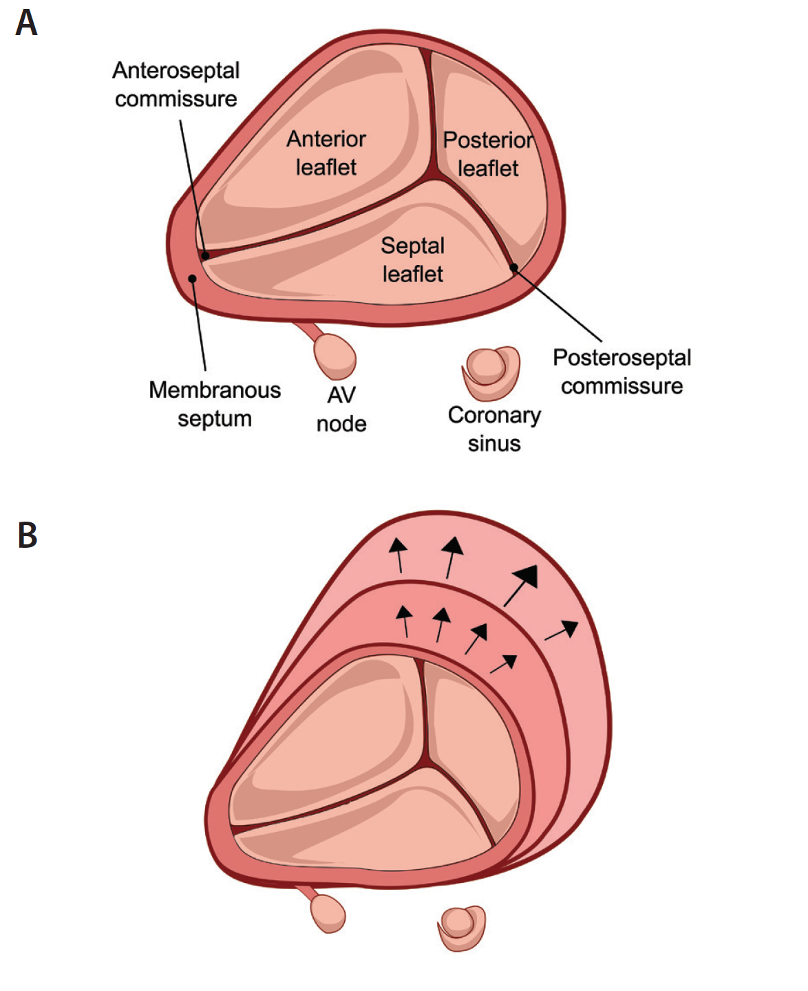 Cardiac interventions today transcatheter tricuspid valve tricuspid valve anatomy from surgeons view a impact of progressive annular dilation primarily on the anterior and posterior annulus causing worsening ccuart Gallery