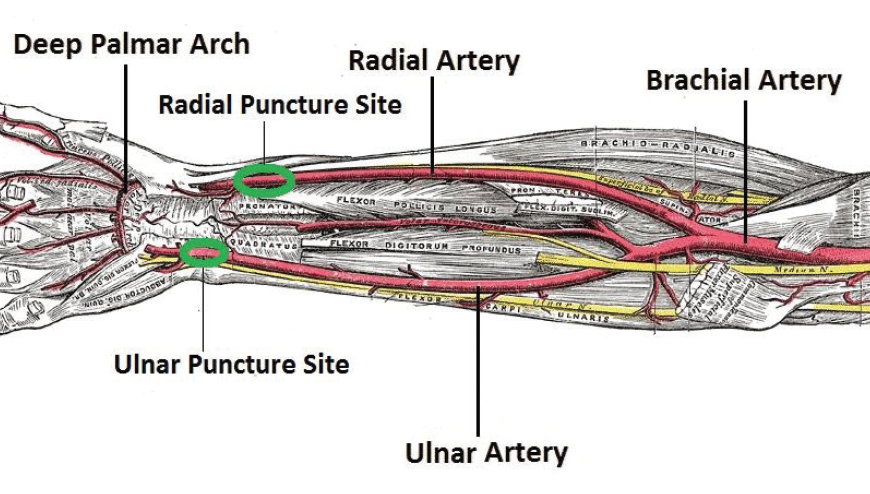 Cardiac Interventions Today - Ulnar Access for Catheterization and ...
